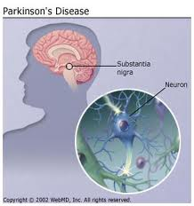 parkinson_new_therapy