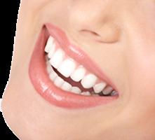 teeth-smile1