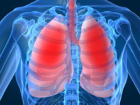 pneumoniokokos