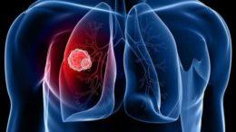 pneumonas